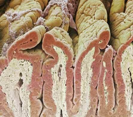 Imagen intestinos delgado