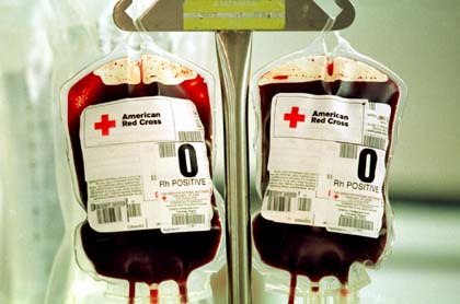Tranfusión - Sangre
