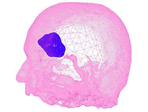 Tumor 3D